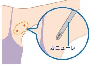 ワキガ手術の種類と費用2-皮下組織吸引法