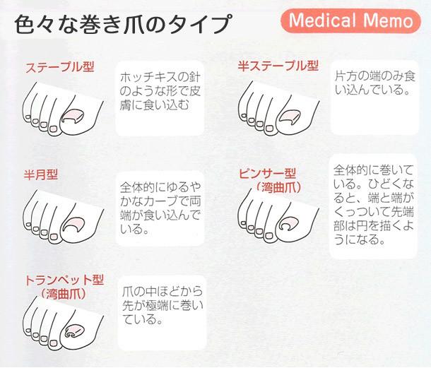 巻き爪の種類1