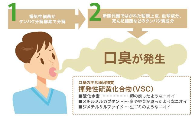 口臭の原因は3種類のガス