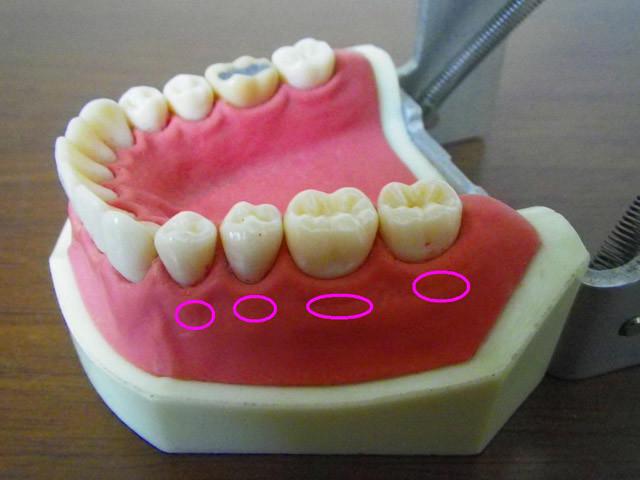 歯槽膿漏(しそうのうろう)