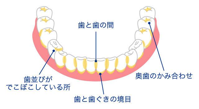 正しい歯の磨き方5