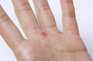手のひらや足の裏にできるマメの対処法と予防法