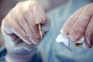 皮下組織削除法とは〜メリット・デメリット・手術時間・費用について〜