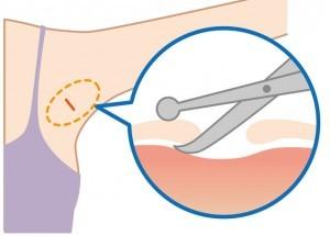 ワキガの手術-皮下組織削除法