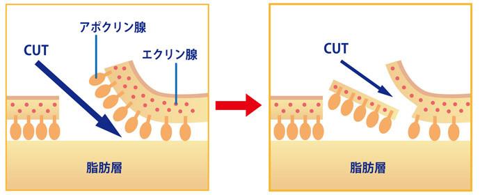 ワキガの手術-剪除法(せんじょほう)2