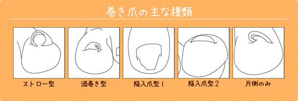 巻き爪の種類2